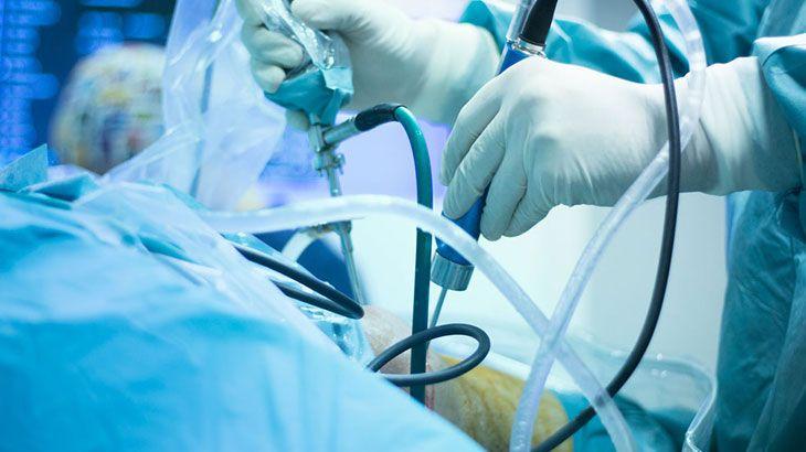 Ortopedide Artroskopi